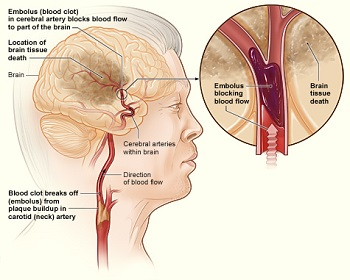 Cerebral arteriosclerosis treatment