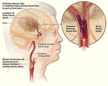 what is cerebral arteriosclerosis? - symptoms & treatment | study, Human Body