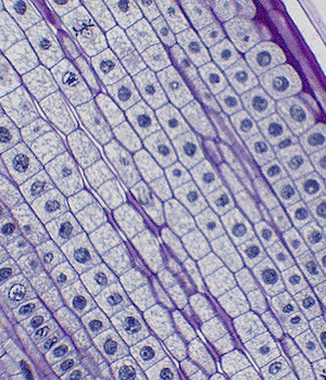 onion root tip cells