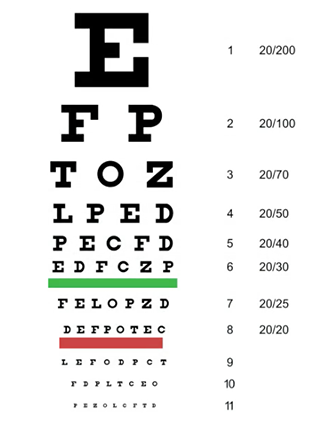 Blindness & Vision Impairment: Medical Vocabulary - Video