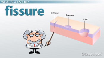 What Is a Fissure? - Definition, Signs, Symptoms & Treatment - Video ...