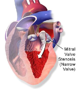 Rheumatic Heart Disease During Pregnancy: Complications ...