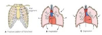 Flail Chest  Symptoms   Treatment   Study