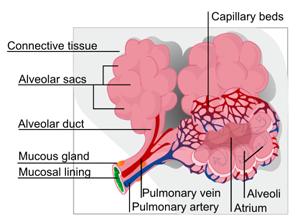 pulmonary edema diagram