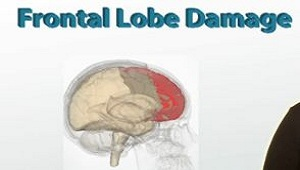 Frontal Lobe Damage