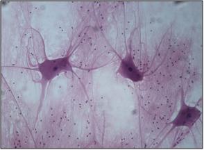 294 x 216 png 103kBOligodendrocytes