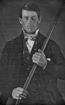 Phineas Gage portrait