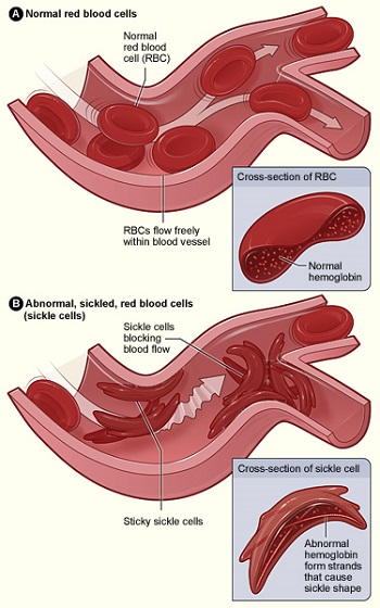 Comparison between normal and sickle cell anemia red blood cells
