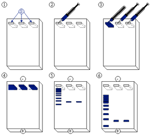 protein electrophoresis steps