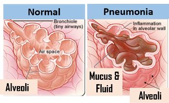 Pneumonia Lesson for Kids | Study com