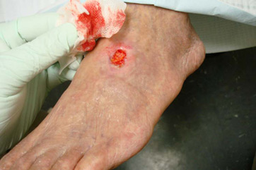 what is debridement of a wound definition types uses study com