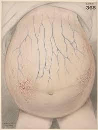 Appendiceal Cancer Causes Symptoms Amp Types Study Com