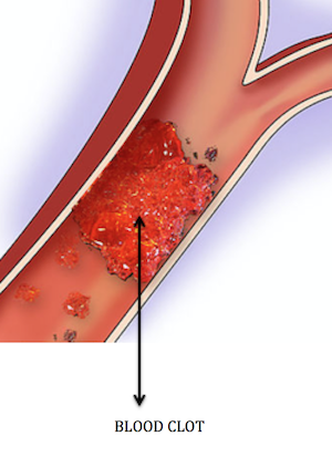 how to tell a blood clot