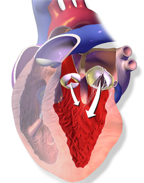 Aortic semilunar valve definition function video lesson lets look at this diagram of blood flowing backwards through the heart which happens if there is a problem with the aortic semilunar valve ccuart Image collections