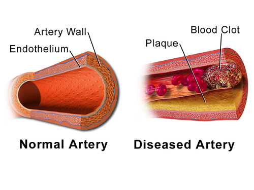 Normal artery versus occluded artery