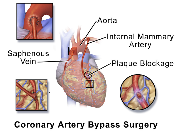 picture showing vein and artery grafts