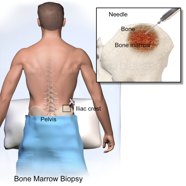 What Is a Bone Marrow Biopsy? - Procedure, Recovery & Side Effects ...