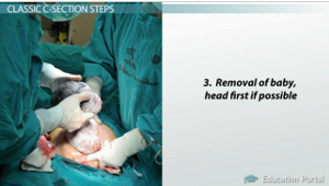What is a C-Section? - Procedure, Types & Delivery - Video
