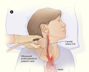 Amaurosis Fugax- A Clinical Review - nsuworks.nova.edu