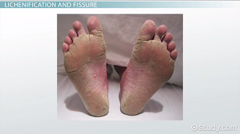 Nomenclature of Skin Lesions: Secondary Lesions - Video & Lesson ...