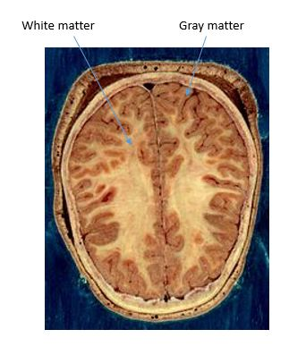 What is the cerebrum definition functions location video cerebral cortex ccuart Choice Image