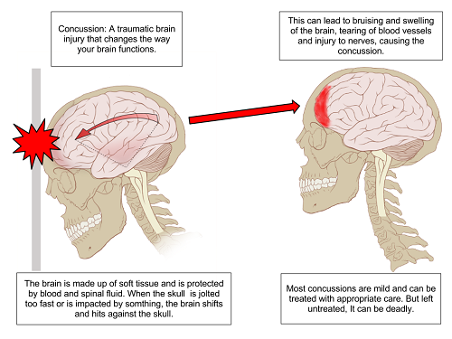 picture about Brain Injury Worksheets Printable known as What is Head Hurt? - Brings about Repercussions