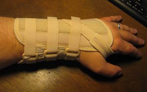 Splints In Occupational Therapy Types Amp Uses Study Com