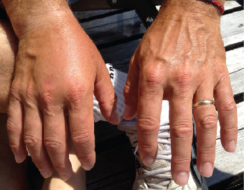 Picture showing edema in the right hand