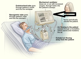 Ventilator to help with breathing