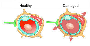 healthy and damaged blood-brain barrier