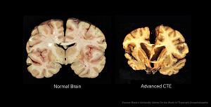 what is encephalopathy? - definition, symptoms & treatment | study, Skeleton