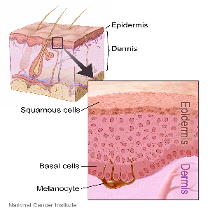 Diagram showing layers of the epidermis