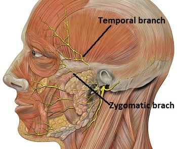 orbicularis oculi muscle innervation origin insertion