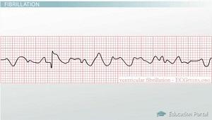 Arrhythmia of the Heart: Terms, Definition & ECG Detection
