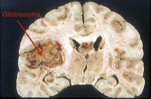 ciprofloxacin side effects