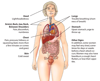 back pain during a heart attack study com Muscle Diagram Human Heart heart attack symptoms in women