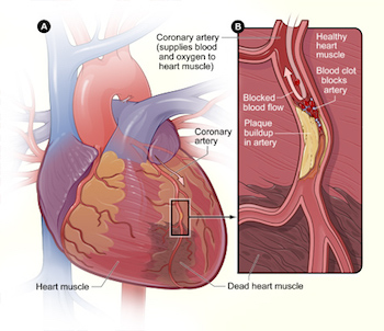 Blood clots in the heart prevent blood flow, which can lead to cardiac muscle death