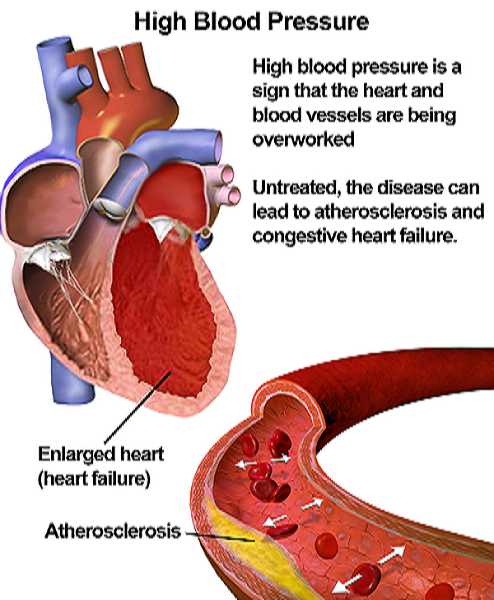Is viagra safe for high blood pressure