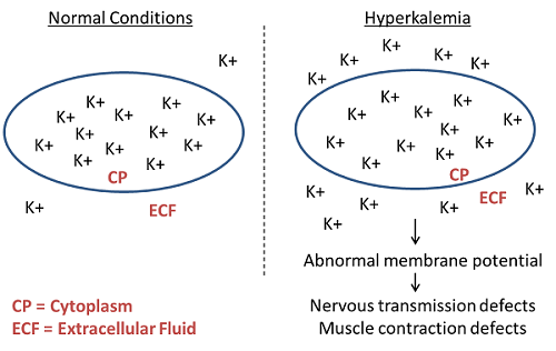 Hyperkalemia is elevated potassium in the extracellular fluid