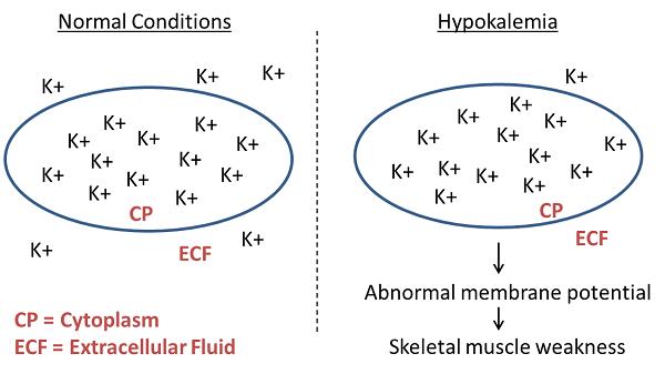 Hypokalemia; Hypopotassemia