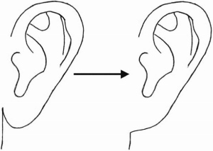 Unattached and Attached Ear Lobes