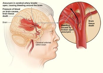 Stroke Prevention and Treatment   JACC: Journal of the ...