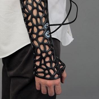 Orthopedic Casting Techniques | Study com