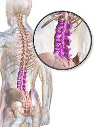 Lumbar Spine Dislocation: Symptoms & Treatment | Study com