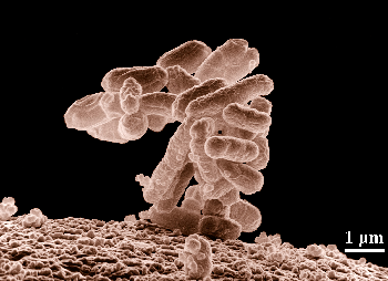 Picture of a micrograph of a microorganism