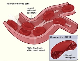 Anemia vs  Hypoglycemia   Study com