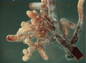 Arbuscule mycchorizae under a microscope