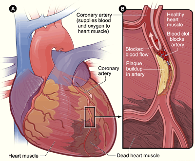 Heart attacks levels types study diagram of a heart attack ccuart Choice Image