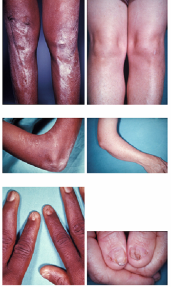 Pictures of Nail-Patella Syndrome