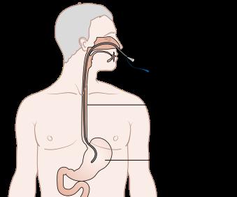 food tube diagram what is a feeding tube  types   complications study com  what is a feeding tube  types